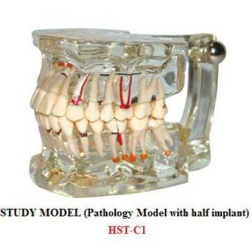 Dental Study Education Model With Pathology And Half Implant